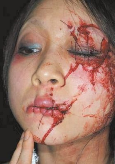Saudi Arabia - Girls mouth and eye sewn shut